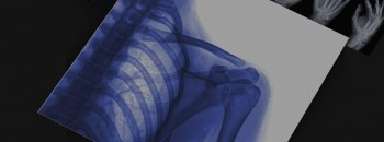 A Survival Guide to Musculoskeletal Imaging