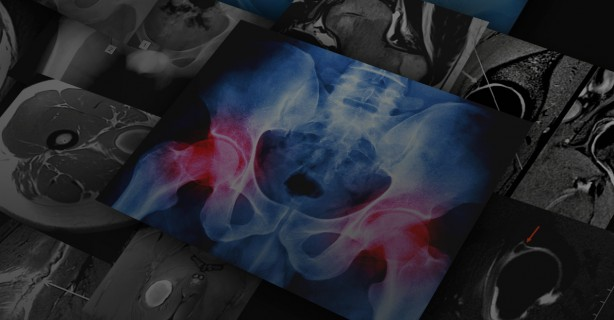 Imaging of the hip and lower extremities
